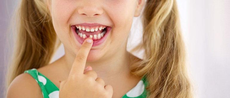 Задачи ортодонта при лечении детей с кариесом зубов, заболеваниями краевого пародонта и плохим гигиеническим состоянием полости рта