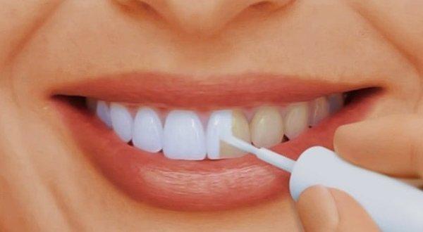 Изменение цвета зубов