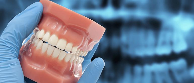 Физиологическое стирание зубов